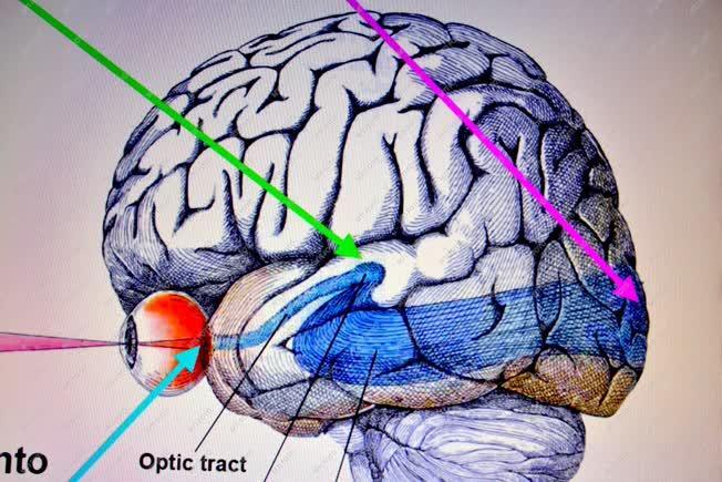 új a látásról a vizuális eltérés mutatói